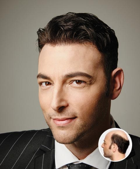 Hair Replacement Solutions for Men